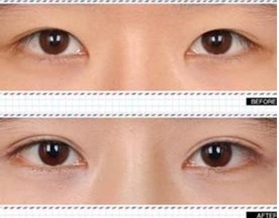 埋线与韩式切开双眼皮区别剖析