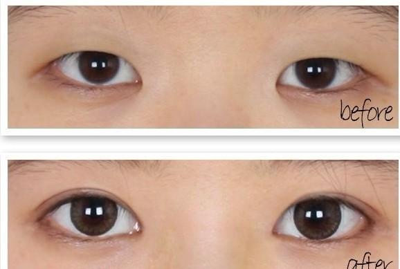 双眼皮手术失败的原因图片