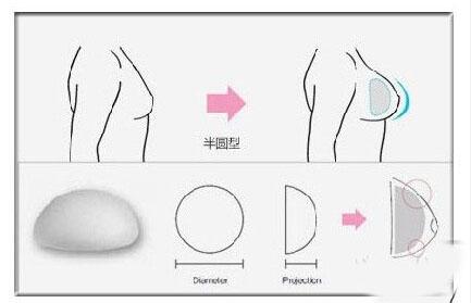 半圆形or水滴形 隆胸假体这么选