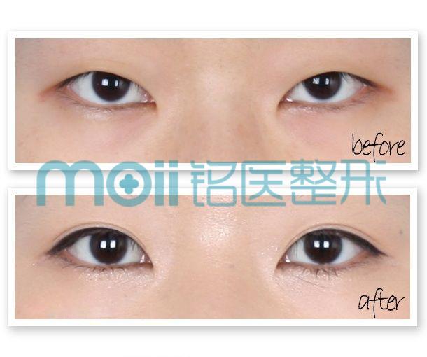 韩式切开双眼皮手术新选择