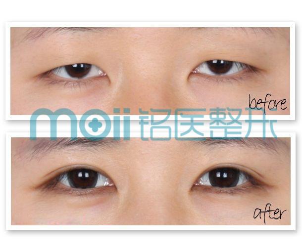 双眼皮选择韩式切开很简单
