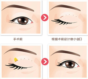 图解 双眼皮手术 看完你也变专家