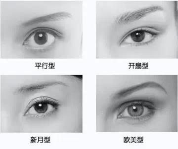 双眼皮,类型,长春好的整形医院