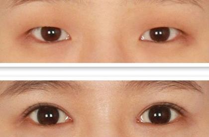 开眼角和割双眼皮恢复期是多久