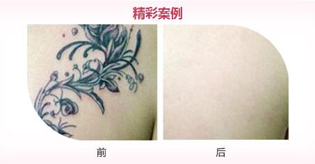 而且洗纹身比做纹身的疼痛感要大图片
