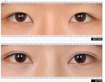 长春双眼皮手术恢复过程图
