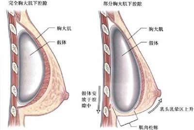 假体隆胸做得太下了 是用什么修复