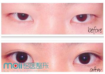 做切开法双眼皮手术价格是多少 长春双眼皮整形选铭医